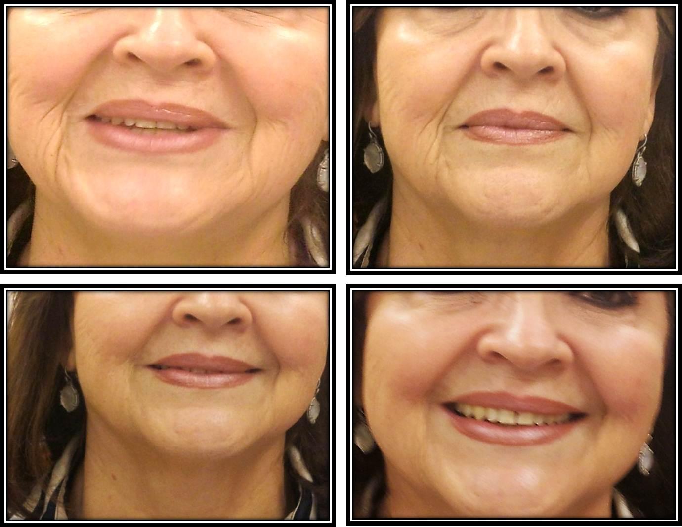 Tightening Skin & Increasing Collagen