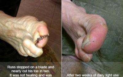 K. Truman –Foot Sores Healed